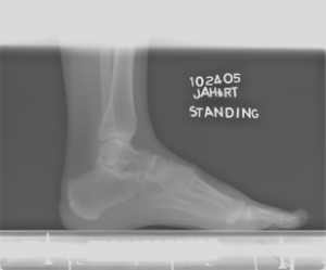 Aneurysmal+bone+cyst+foot+Radiology20101103_0140.jpg?version=1&modificationDate=1288823424000