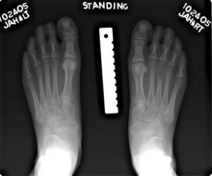 Aneurysmal+bone+cyst+foot+Radiology20101103_0141.jpg?version=1&modificationDate=1288823424000