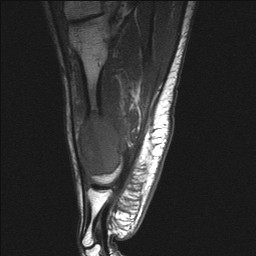Aneurysmal+bone+cyst+foot+Radiology20101103_0142.jpg?version=1&modificationDate=1288823424000