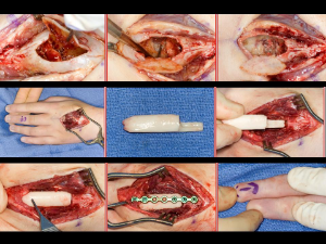 Aneurysmal+bone+cyst20101102_0116.JPG?version=1&modificationDate=1288731837000
