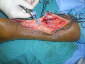 V-Y Advancement and FHL Transfer for the Chronic or Neglected