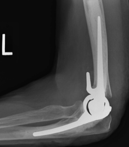 Treatment Options for Distal Humeral Fractures
