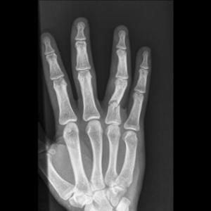 Spiral Fracture Ring Finger