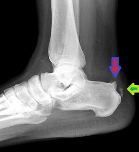 Haglund S Deformity Shoe Modification