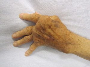 dating rheumatoid arthritis Dating arthritis posted on 22122016 22122016 by akira eleven more categories were added four weeks ago: rickard, a recovering alcoholic with bipolar disorder who is on six antidepressants and tranquilizers, says.