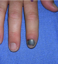 Disorders Of The Nail