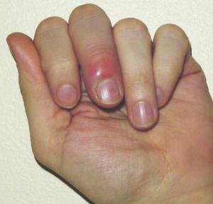 finger and hand infections musculoskeletal medicine for