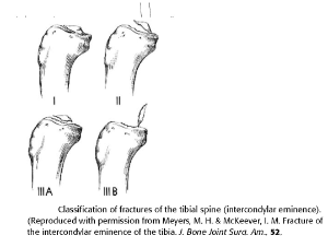 Fractures Of The Tibial Spine Intercondylar Eminence