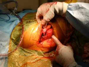 Direct Lateral Approach Total Hip Arthroplasty